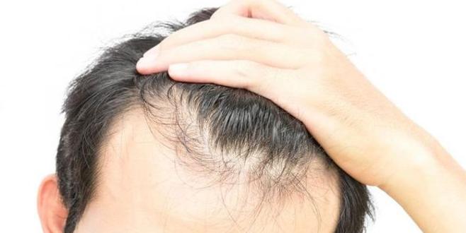 Sağlık Bakanlığı saç ekimi konusunda vatandaşları uyardı