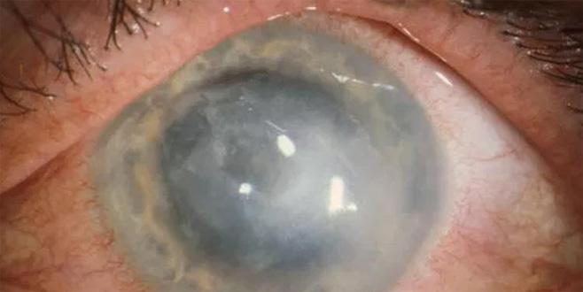 Kontakt lens kullananlar dikkat! Körlüğe yol açıyor...