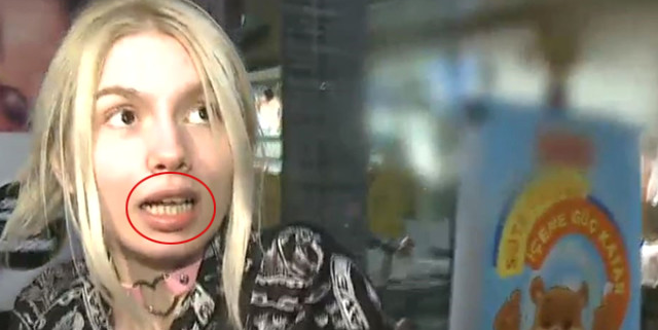 Aleyna Tilki'nin dişleri, sosyal medyada alay konusu oldu