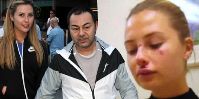 Serdar Ortaç'ın eşi  kaza geçirdi! Acilen hastaneye kaldırıldı