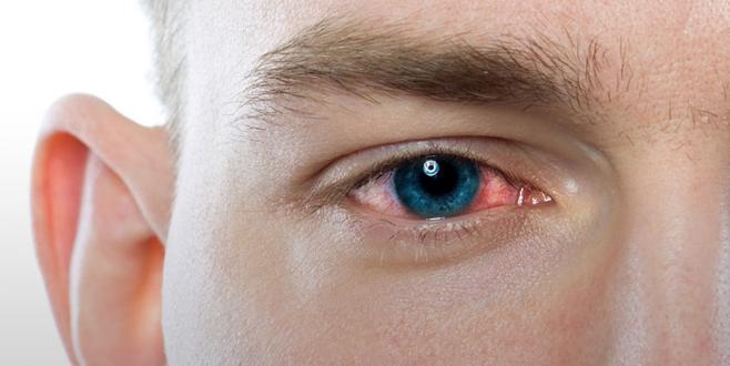 Göz enfeksiyonu salgınına dikkat!