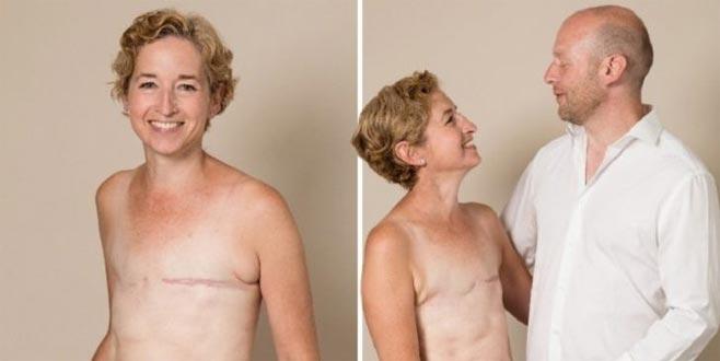 Kanseri üçüncü kez yendi! 'Göğsümüz olmadan da güzeliz'