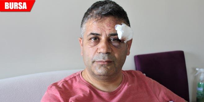 Bursalı siyasetçi trafik magandalarının saldırısına uğradı