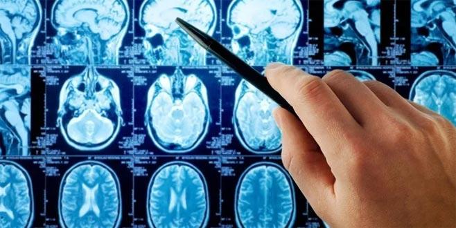 Beyin pili kimlere uygulanıyor?