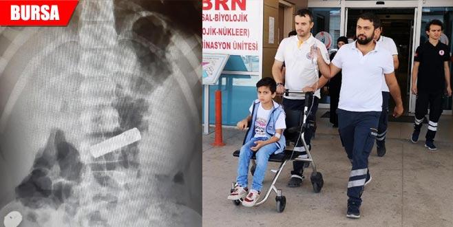 Kumanda pilini yutan Ömer hastanelik oldu