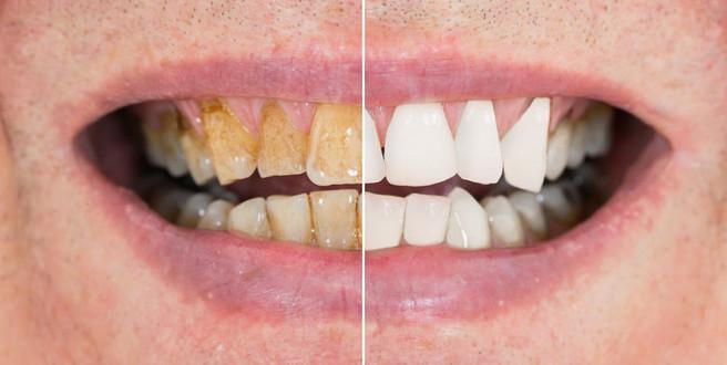 Sadece 2 malzemeyle beyaz dişlere kavuşun!
