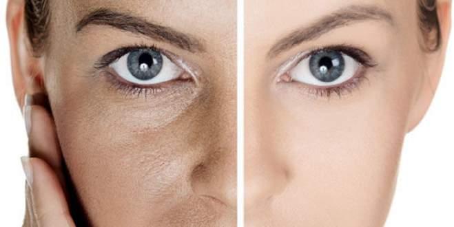 Gözenekler Nasıl Kapanır Gözenek Küçültme Ciltteki Gözeneklere Çözümler