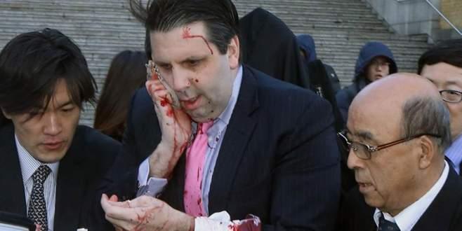 ABD Büyükelçisi'ne jiletli saldırı