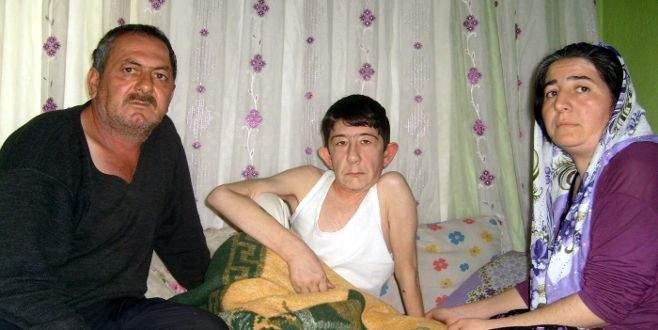 Milyonda bir görülen hastalık onu buldu 57
