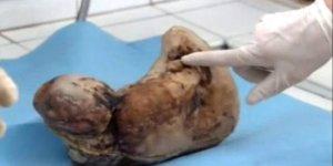 Karnındaki bebeği 50 yıl doğurmadı! İşte sonuç