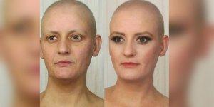Kanserli hastayı oynadı, 9 ay sonra...