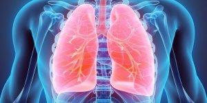 Sigara içen donörden alınan organ, hastayı kanserden öldürdü