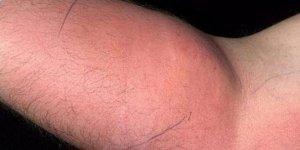 Sırt ağrısı sebebiyle 18 ay boyunca koluna sperm enjekte etti!
