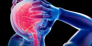Amerikan Baş Ağrısı Birliği, migrende cerrahi tedavinin yeri olmadığını açıkladı