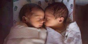 Olmaz dediler oldu! İkizler ama babaları farklı!