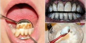 Diş taşlarını ortadan kaldırmak için 3 etkili yöntem
