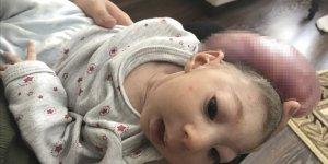 Kafasında kitleyle doğan bebeklerinin ameliyat edilmesini istiyorlar
