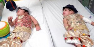 Yapışık ikizler 50 saatlik ameliyatla ayrıldı