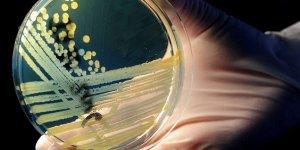 '2050'de antimikrobiyal direnç her yıl 10 milyon can alabilir'