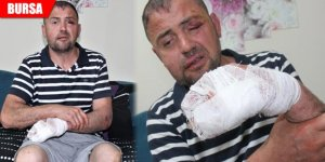 Gaziyi gittiği kafede ayaklarını uzattı diye öldüresiye dövdüler