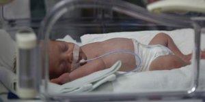 650 gram doğdu, hayata tutundu