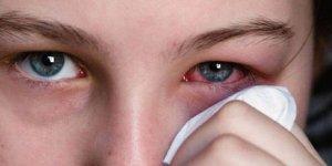 Göz enfeksiyonunu anında geçiriyor