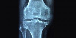 'Osteoporoz 3 kadından birini kıskacına alıyor'