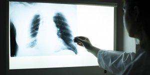 Aşırı kiloluların akciğerlerinde astıma yol açan yağ dokusu tespit edildi