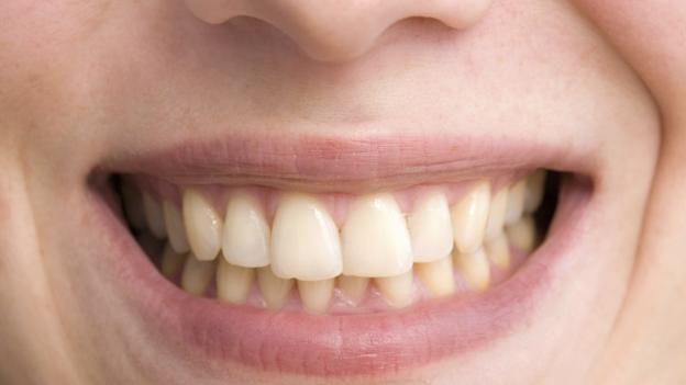 160118165616_teeth_stain.jpg