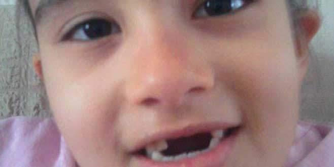 Doktor hatası dişlerine mal oldu!