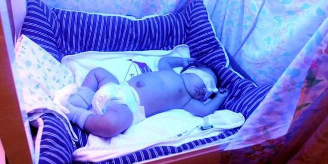 Mavi ışık hastası bebeğe devlet eli uzandı