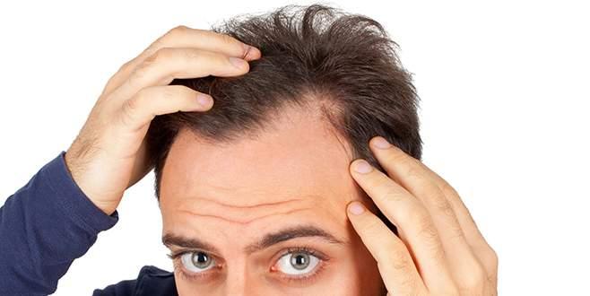 Saç dökülmesine karşı tüketin