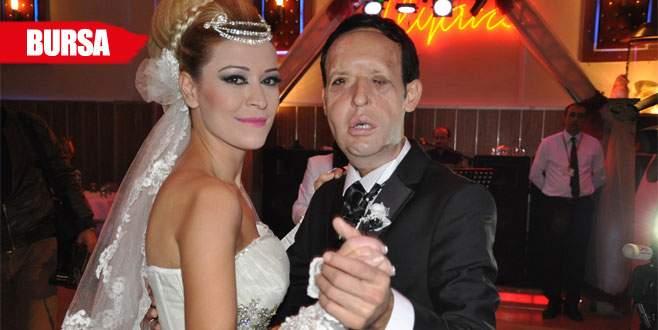Yüz nakli olan Recep Sert evlenmişti, şimdi ise…