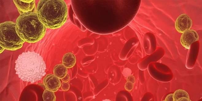 Sinsi hastalık sepsis bilinmiyor