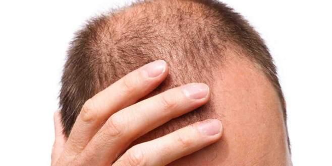 Saç dökülmesi o hastalığın habercisi olabilir