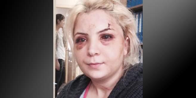 'Eski kocam dövdü' diye karakola gitti, cinayetten tutuklandı