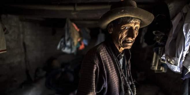 Bu köyün nüfusunun çoğu görme engelli