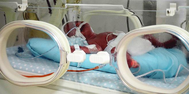 Bursa'da beşiz bebekler solunum cihazından kurtuldu