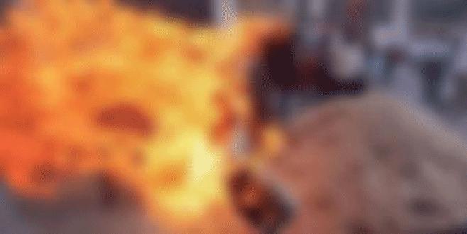 Babası otomobil parasını tamamlamayınca kendini yaktı