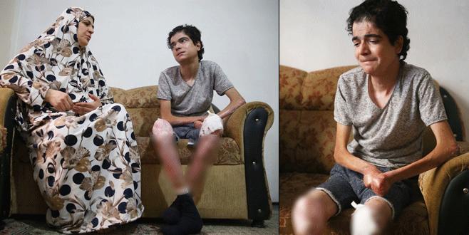 'Kelebek hastası' Suriyeli, şifayı Bursa'da arıyor