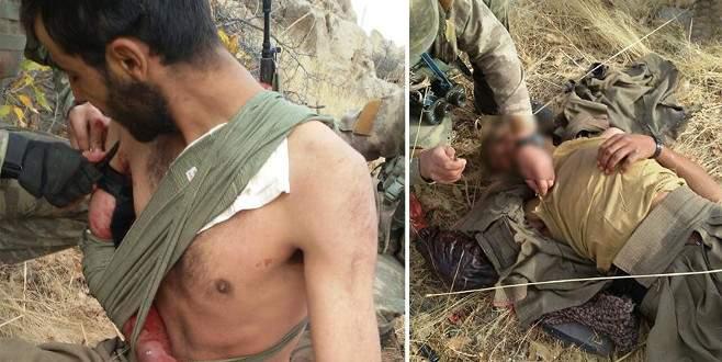 Yaralı teröriste ilk yardım Mehmetçik'ten geldi