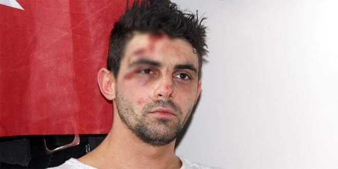 Rotterdam'da yaralanan Türk vatandaşı, o anları anlattı