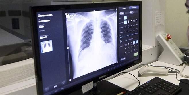 Türkiye'de ilk kez kanser hastasına akciğer nakli yapıldı