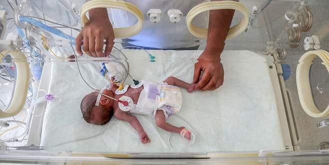 'Mucize bebek' ameliyatla yaşama tutundu