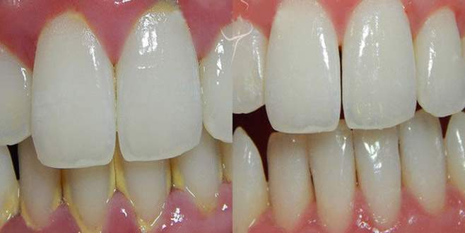 Diş tartarına çözüm