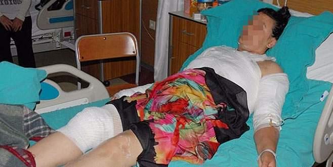 Bursa'da korkunç olay! Kocasının sevgilisi tarafından üzerine sıcak su döküldü