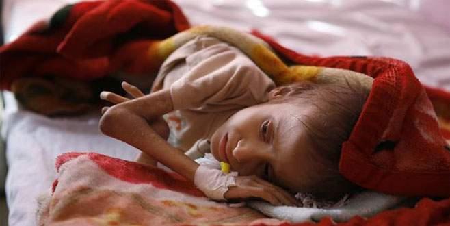 Dünyanın en büyük açlık krizi