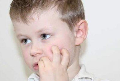 Çocuğunuz tırnak yiyorsa dikkat!