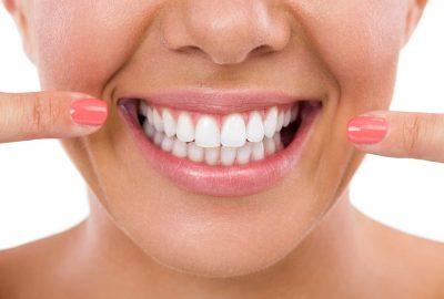 Diş beyazlatma için 5 doğal yiyecek