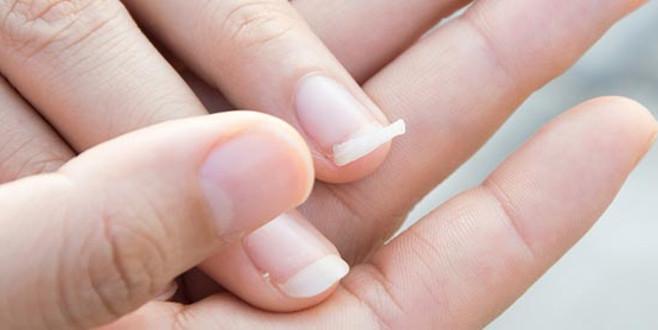 Tırnaklarınız sürekli kırılıyorsa nedeni bu hastalık olabilir!